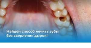 Лікування карієсу без болю в Києві на Позняках