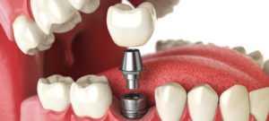 Вы в поисках хорошей стоматологии в Киеве, тогда стоит ознакомиться с некоторыми аспектами, которые помогут вам сделать правильный выбор